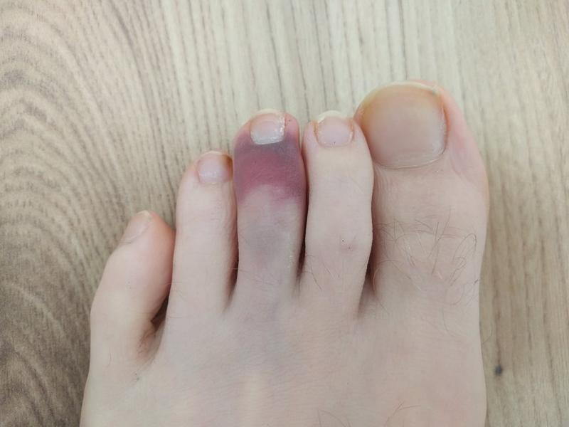 Foot where the middle toe is purple